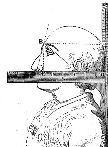 Terminada felizmente la operación, ocurrió que el operado no podía articular palabra. El Dr. Blair imaginó proveerle de una nariz artificial.
